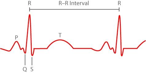 Preview de revisión sobre Variabilidad de la Frecuencia Cardíaca (HRV)